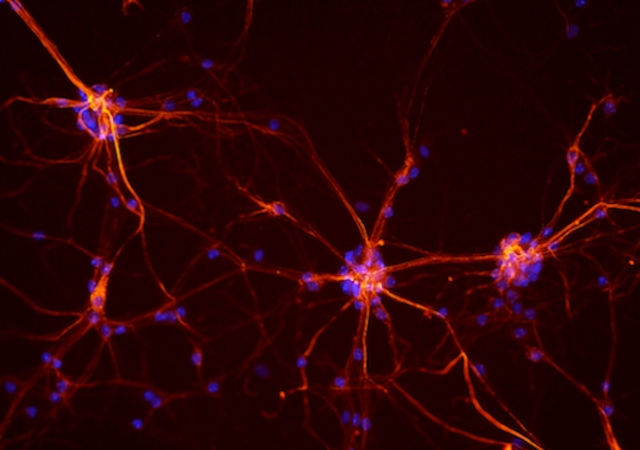 electrical impulses in neurons